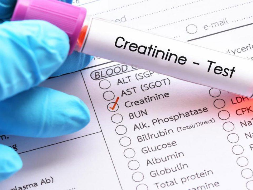 روش های کاهش کراتینین