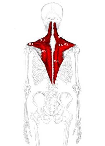 سه قسمت قرارگیری عضله تراپزیوس