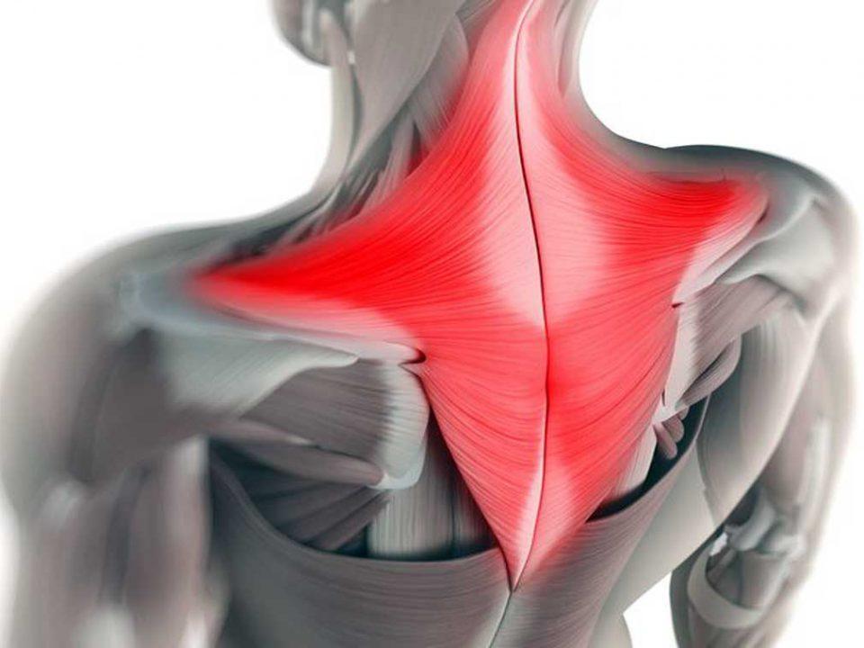 عضله تراپزیوس چیست